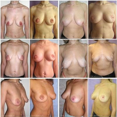 Ромашковый крем увеличить грудь