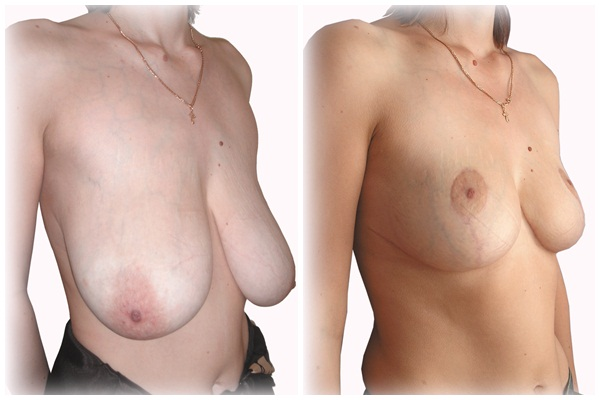 увеличение грудной железы у мужчин лечение