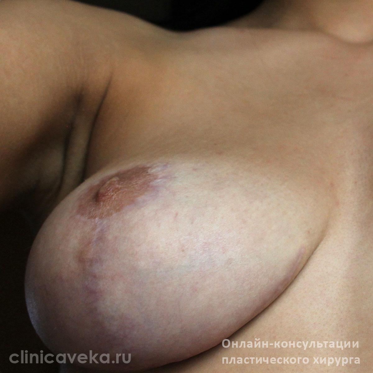Крема для увеличения груди купить в аптека