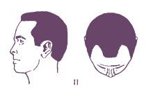 Классификация мужского типа облысения по Норвуду, тип 2