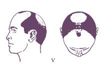Классификация мужского типа облысения по Норвуду, тип 5