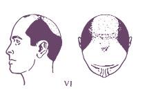 Классификация мужского типа облысения по Норвуду, тип 6