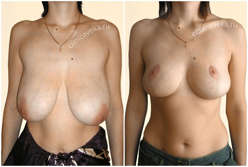Крем от растяжек нужно мазать на грудь
