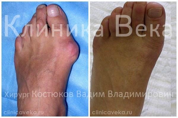 Как выбрать обувь для ног с косточкой у большего пальца