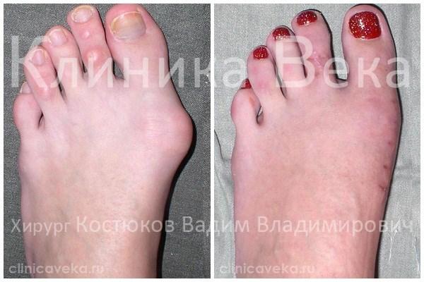 Отзывы про лечение косточки на большом пальце ноги