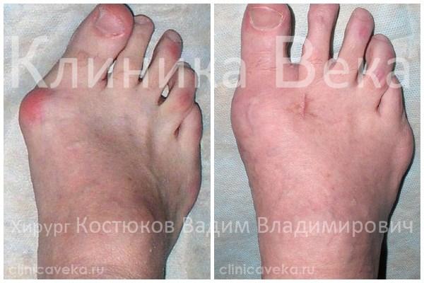 Форум Как избавиться от косточки на ноге (вальгусной деформации стопы)