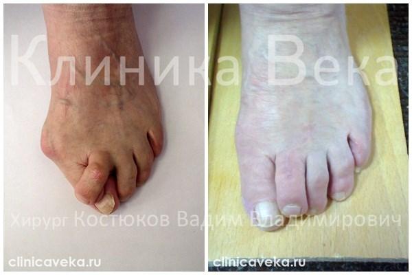 Удаление косточек на ногах хабаровск - Заболевания стопы