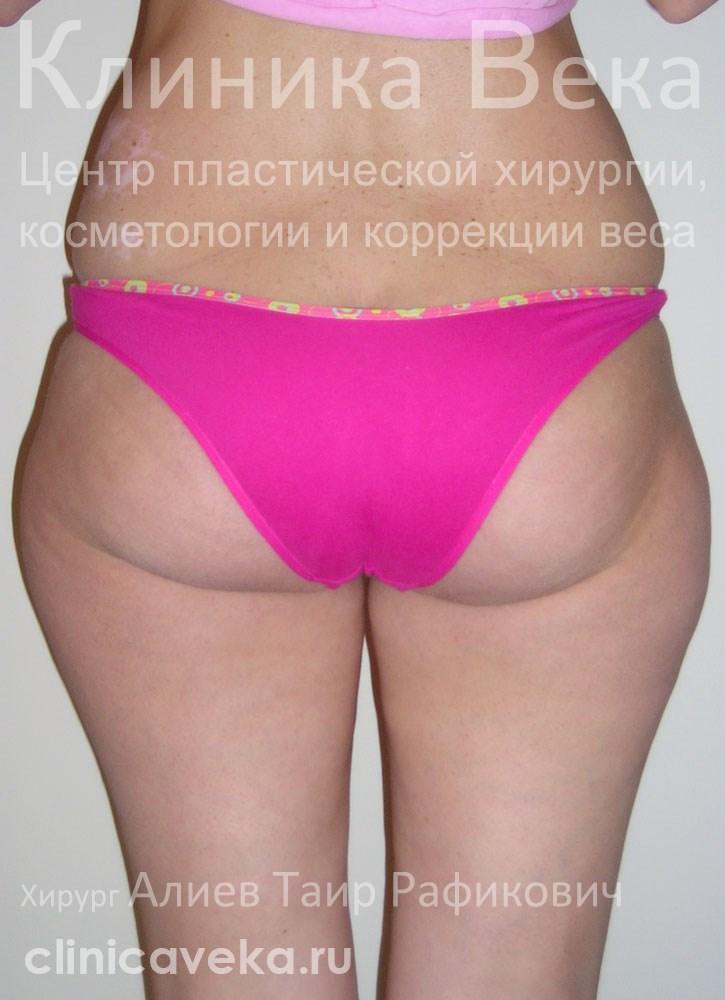 липосакция в области колен