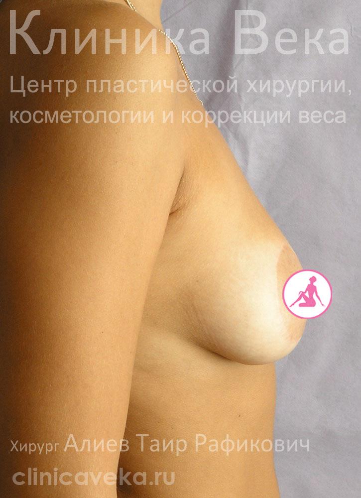 Бюстгальтер который увеличивает грудь на 1 размер