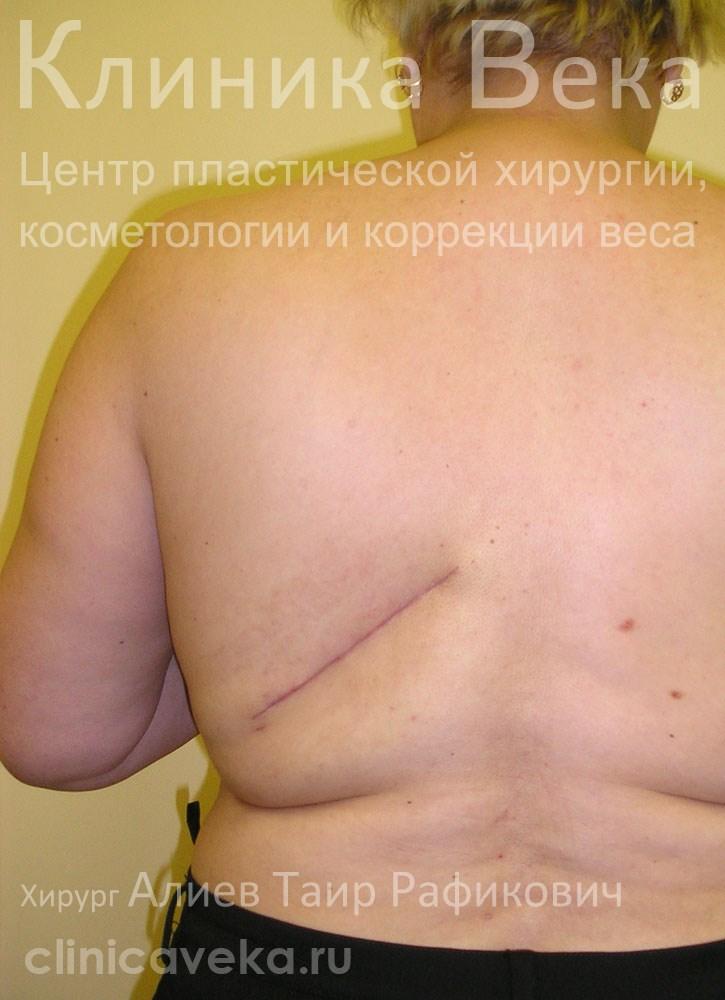 Последствия после удаления липомы