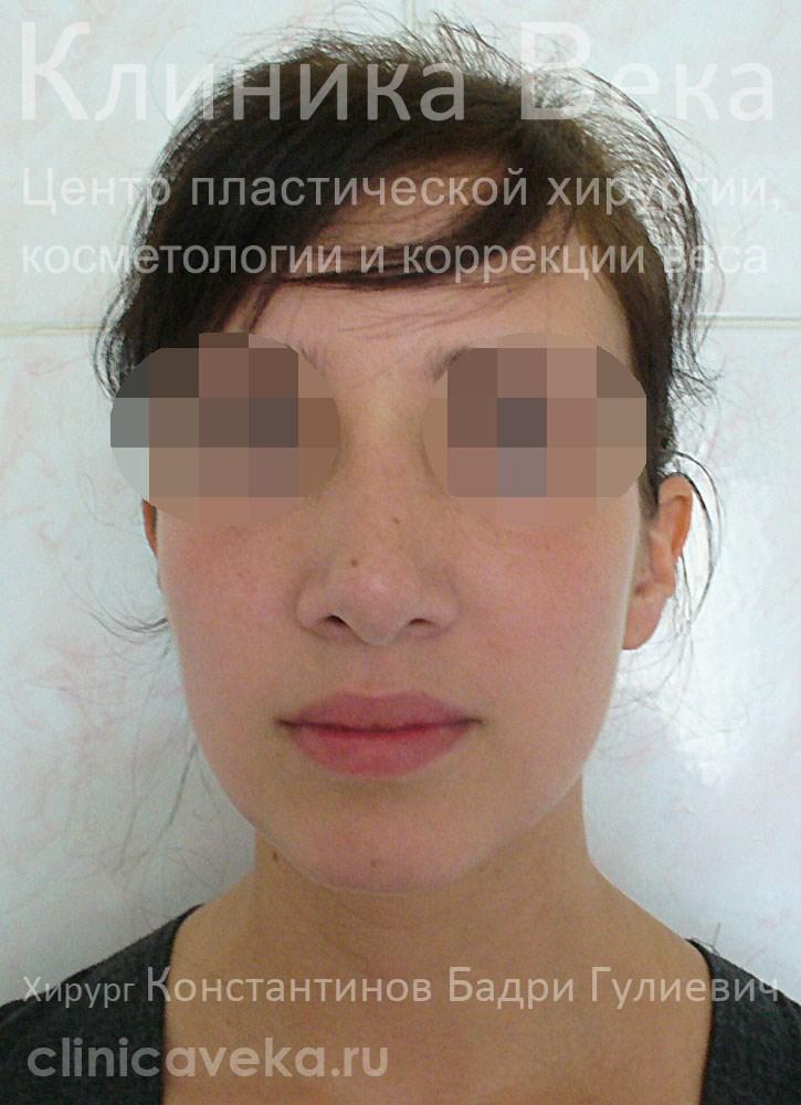 Алиана гобозова сделала ринопластику фото