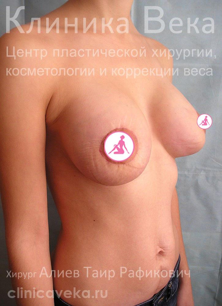 Увеличить грудь народный способ форум