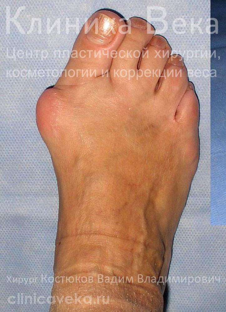 Причины и лечение жжения в ногах