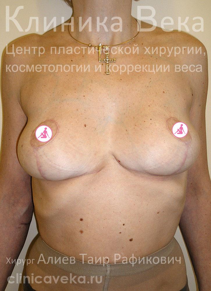 Метод увеличения роста груди у женьщин бесплатно