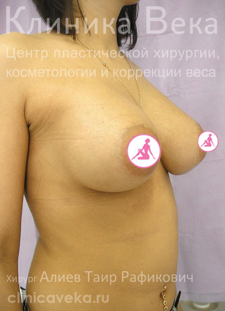 Что нужно делать увеличить грудь