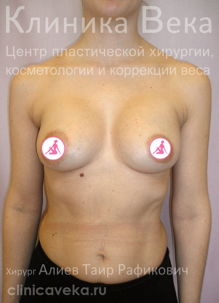 увеличение груди через ареолу