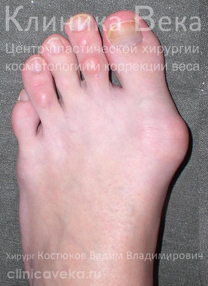 Выросла косточка на ноге сбоку