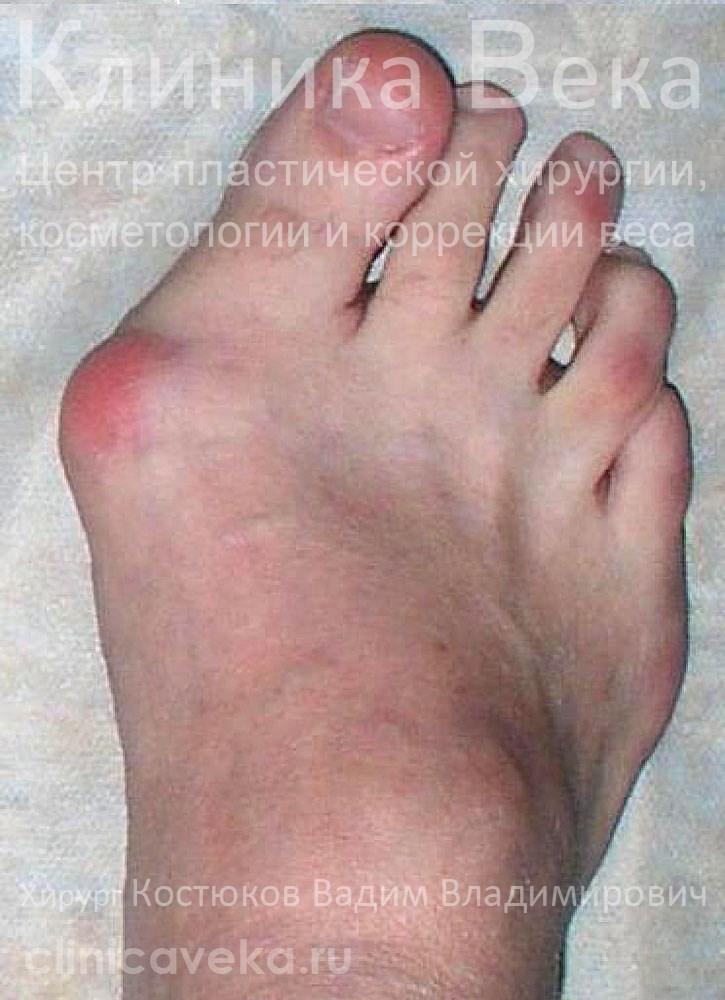 Удаление косточек на ногах Операция и реабилитационный период