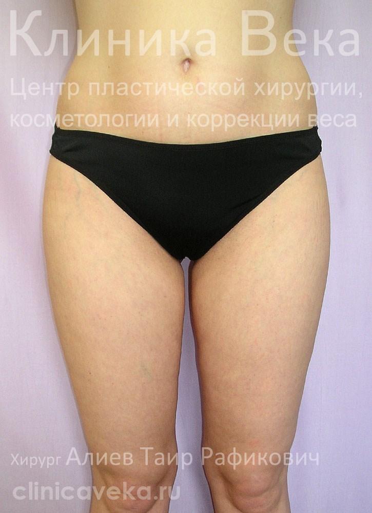 фото удаление груди