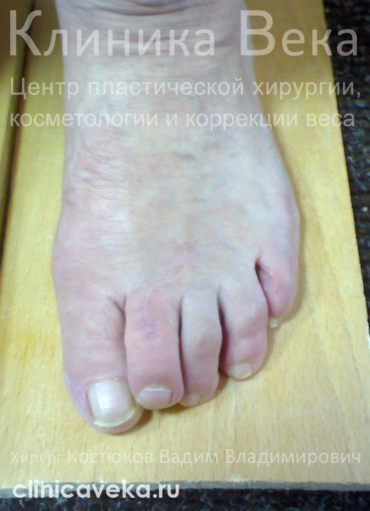Вальгусная деформация большого пальца стопы причины и клиническая картина