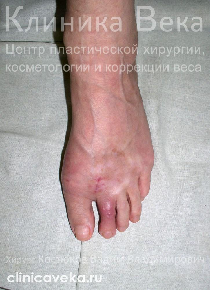 Удаление косточек на ногах
