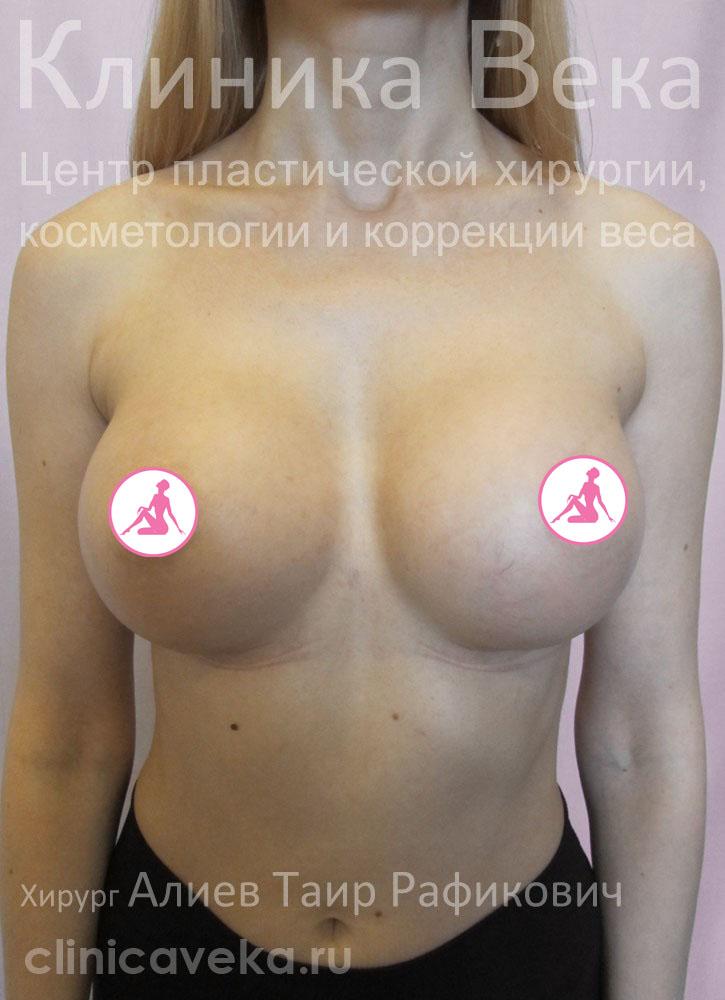 Увеличение груди прайс лист днепропетровск
