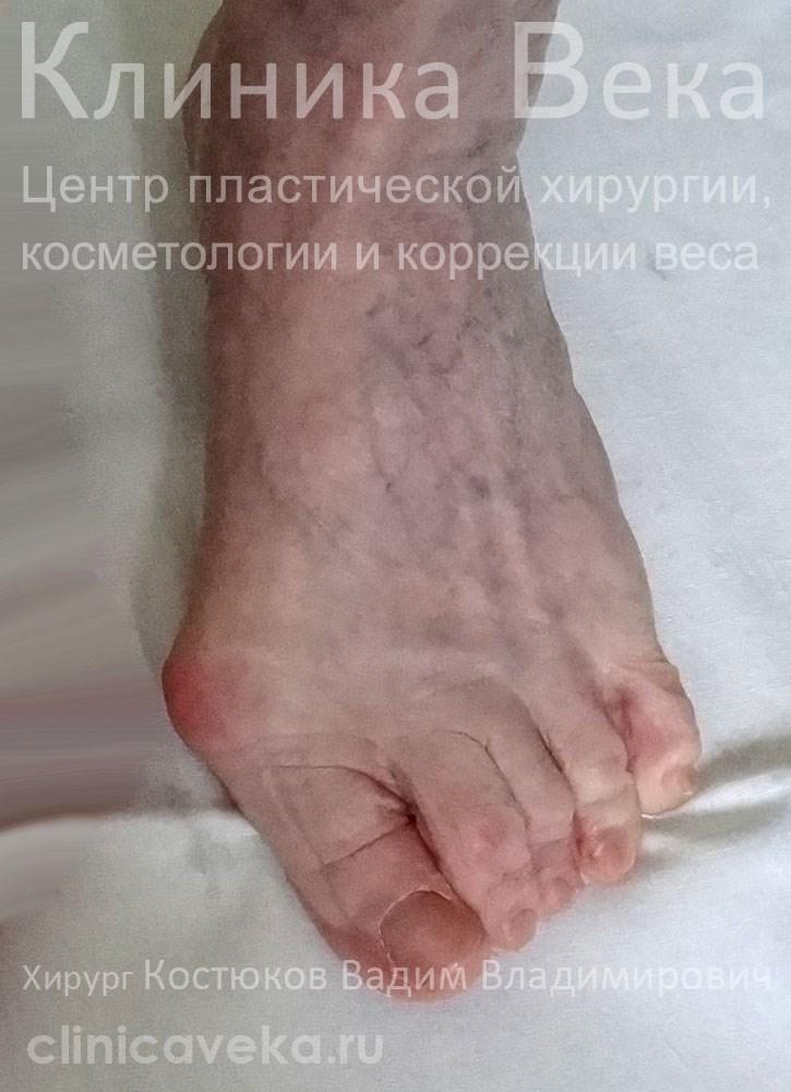 Безоперационное лечение вальгусной деформации большого пальца стопы