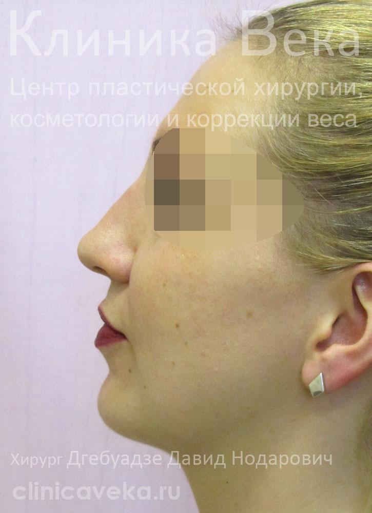 После ринопластики нос стал широким