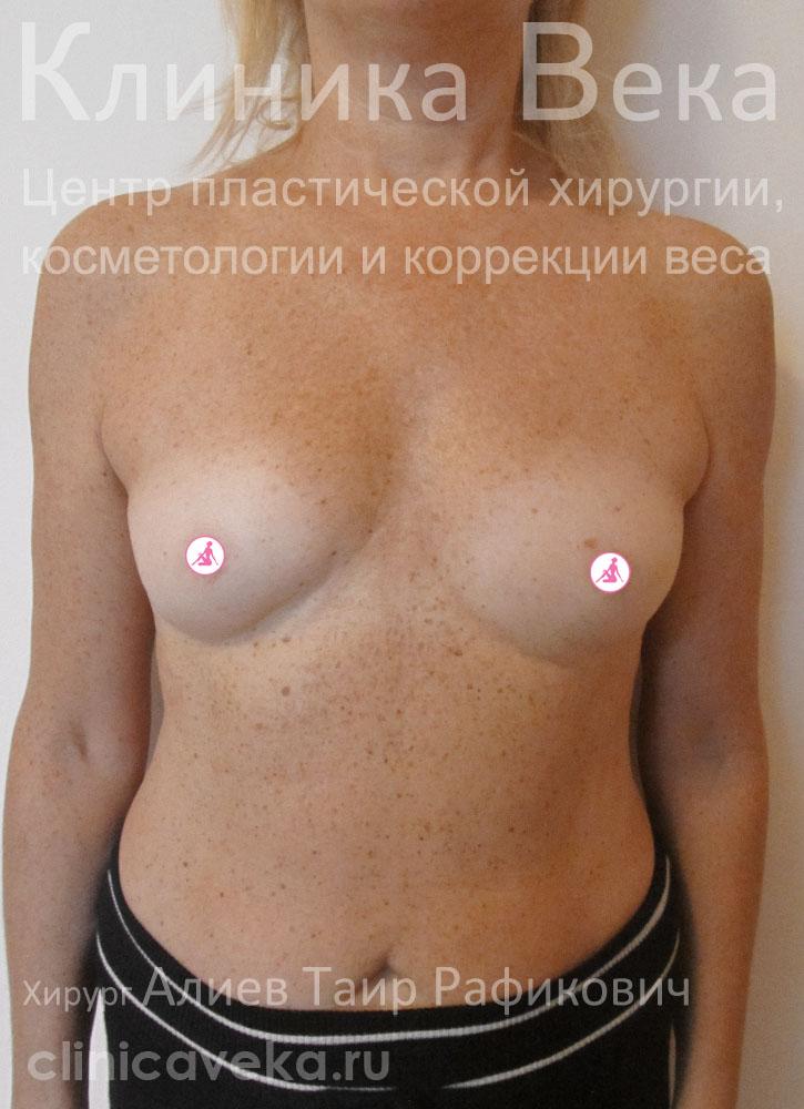 Семенович сделала пластику груди