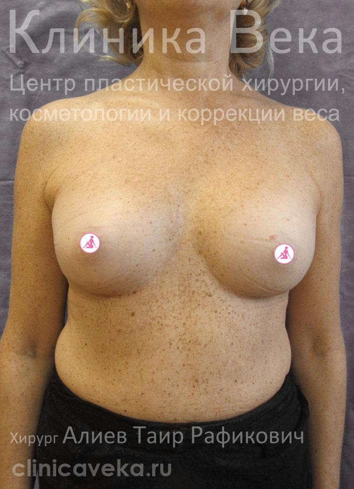 Грудные импланты тула