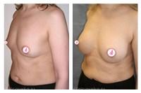 Стоимость операций подтяжка груди