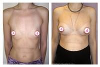 Женский форум как подтянуть грудь
