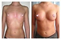 Самая маленькая грудь у девуки 16 лет