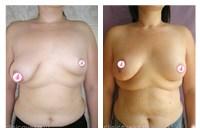 Как увеличить грудь без хирургического вмешательства и без вреда для здоровья