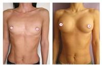Увеличение груди стоит ли