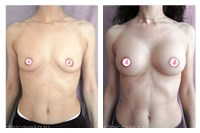 Увеличение груди. Через 3 месяца после. Фотографии до и после пластически