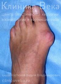 Реабилитация после удаления косточки на большом пальце ноги