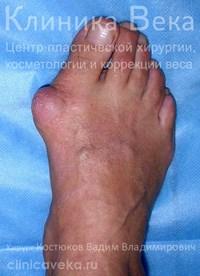 После удаления косточки на ноге