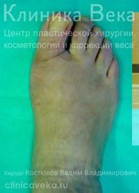 Каблуки после удаления косточек на ногах