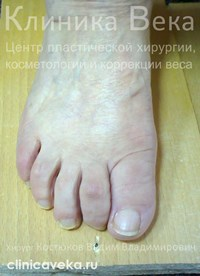Операция лазером по удалению косточки на ноге где делают цена отзывы