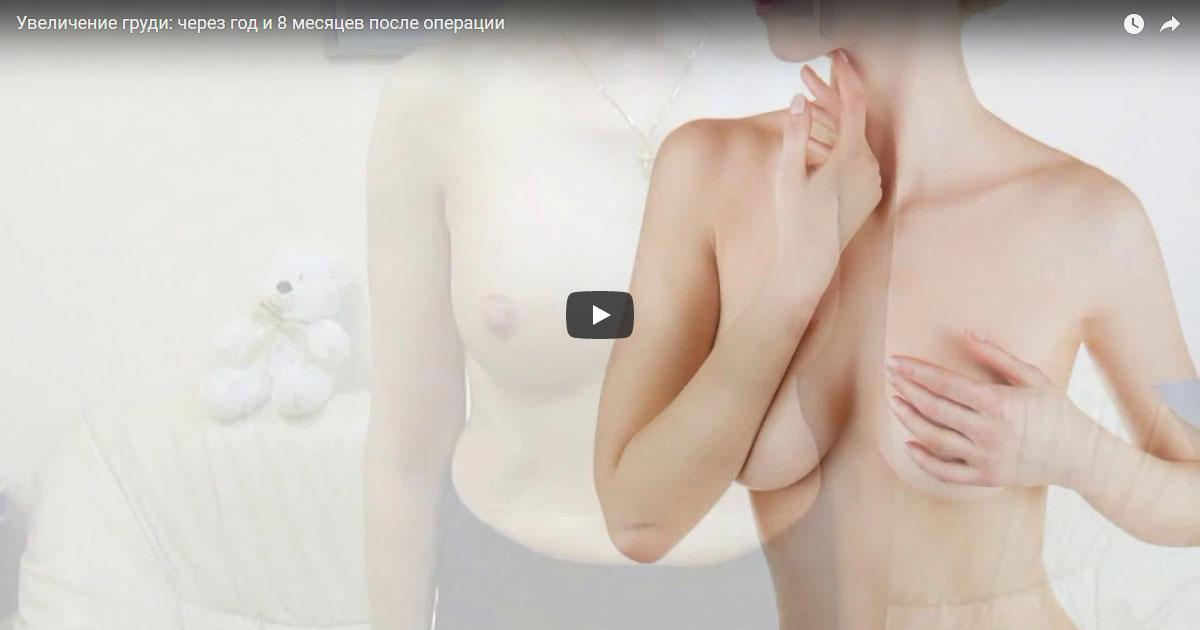 Через год и 8 месяцев после увеличения груди